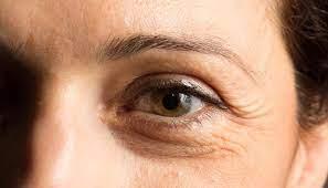 https://www.mulher.com.br/pele/fica-dica/531599/rugas-tipos-tratamentos-e-causas